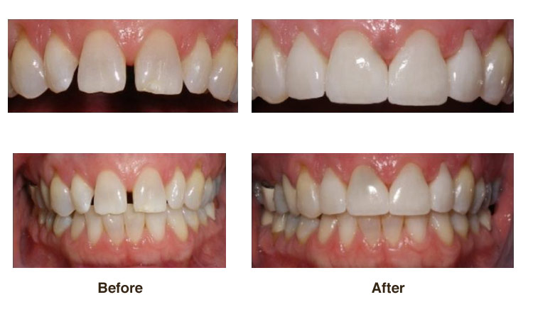 DarlaPorcelain veneers are wafer-thin, custom-made shells of tooth-colored material that can be placed over your tooth surface to conceal cracks and chips, overlay gaps, and to create a whiter or straighter appearance.